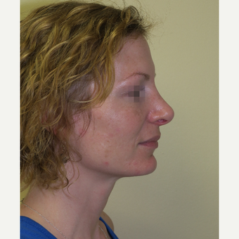 35-44 year old woman treated with Rhinoplasty after 3385020