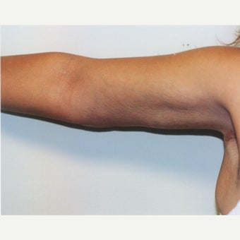 35-44 year old woman treated with Arm Lift (Brachioplasty)