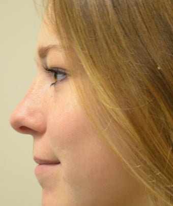 18-24 year old woman treated with Rhinoplasty after 2764828