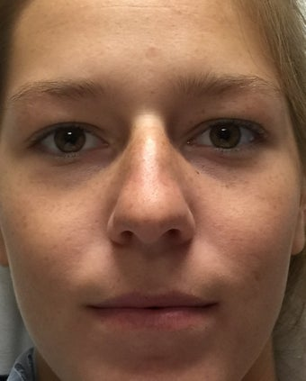 18-24 year old woman treated with Rhinoplasty 2764828