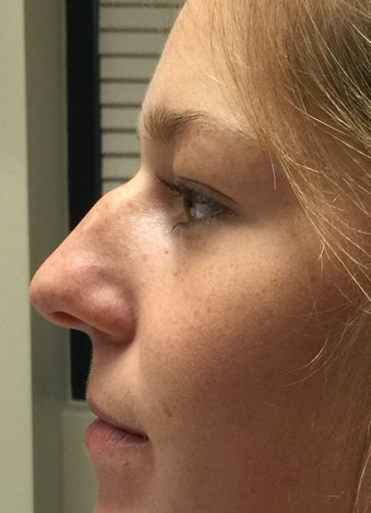 18-24 year old woman treated with Rhinoplasty before 2764828