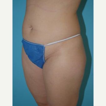 35-44 year old woman treated with Mini Tummy Tuck 1945395