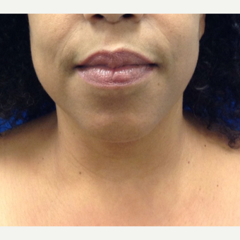 35-44 year old woman treated with Chin Liposuction after 2703749
