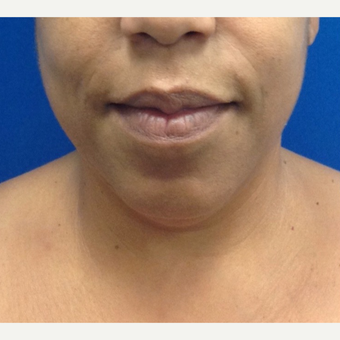 35-44 year old woman treated with Chin Liposuction before 2703749