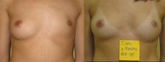 Breast Reconstruction before 390383