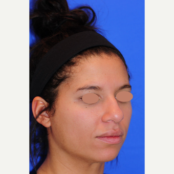 23 year old woman treated with Rhinoplasty before 3173507