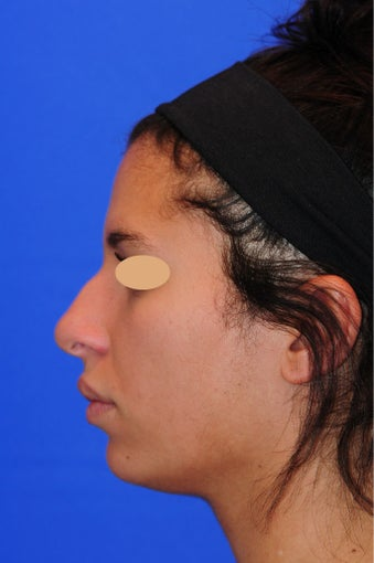 23 year old woman treated with Rhinoplasty 3173507