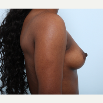 Breast Augmentation before 3425227