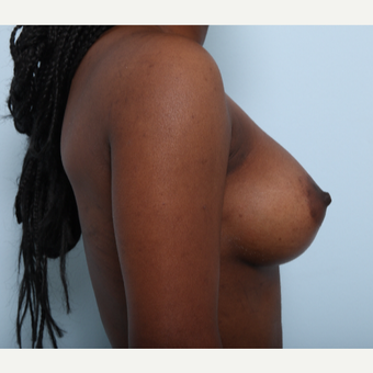 Breast Augmentation after 3425227