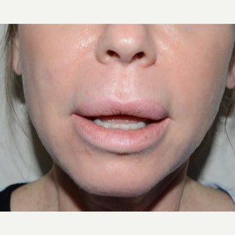 35-44 year old woman treated with Lip Lift before 1629243