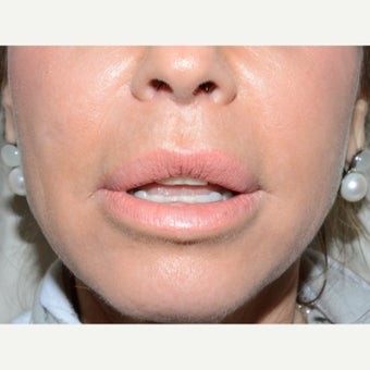 35-44 year old woman treated with Lip Lift after 1629243