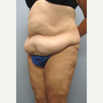 57 year old woman treated with Tummy Tuck before 3680153