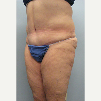 57 year old woman treated with Tummy Tuck after 3680153