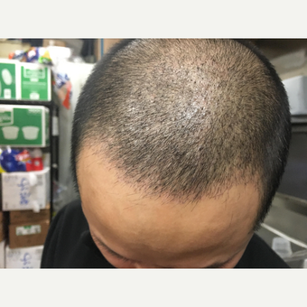 25-34 year old man treated with Hair Loss Treatment before 3618765