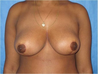 18-24 year old woman treated with Breast Reduction after 3731124