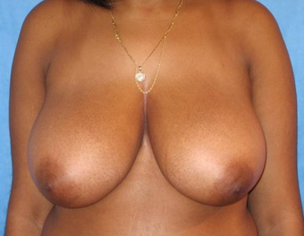 18-24 year old woman treated with Breast Reduction before 3731124