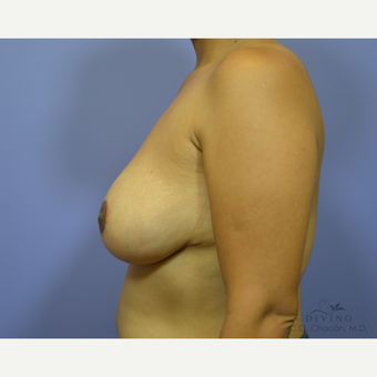 35-44 year old woman treated with Breast Lift after 3420162