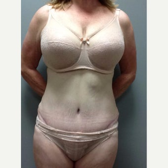 54 year old woman treated with Tummy Tuck after 2248217