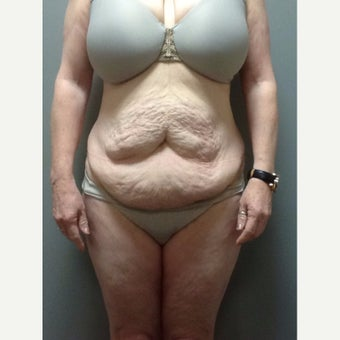 54 year old woman treated with Tummy Tuck before 2248217