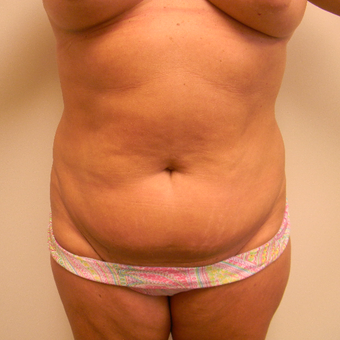 35-44 year old woman treated with Tummy Tuck before 3180325