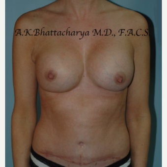 35-44 year old woman treated with Mommy Makeover after 3622365