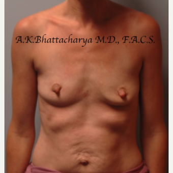 35-44 year old woman treated with Mommy Makeover before 3622365