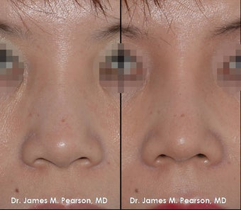 Rhinoplasty / Nasal Surgery before 910143