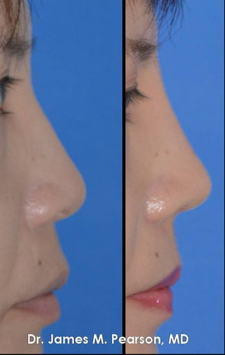 Rhinoplasty / Nasal Surgery after 910143