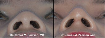 Rhinoplasty / Nasal Surgery 910143
