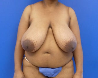 Age 42 Breast Reduction before 1047542