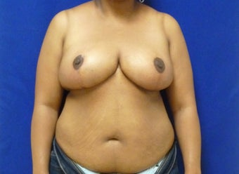 Age 42 Breast Reduction after 1047542