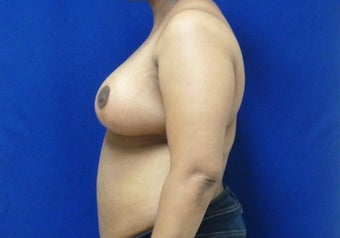 Age 42 Breast Reduction 1047542