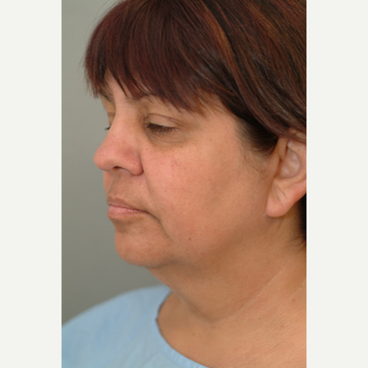 45-54 year old woman treated with Neck Lift before 3764351