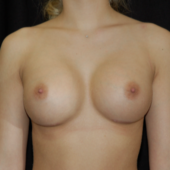 18-24 year old woman treated with Breast Implant Revision after 3036533