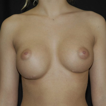 18-24 year old woman treated with Breast Implant Revision before 3036533