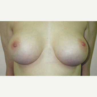 25-34 year old woman treated with Breast Augmentation after 3629446