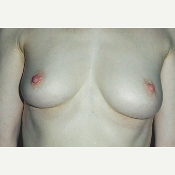 25-34 year old woman treated with Breast Augmentation before 3629446