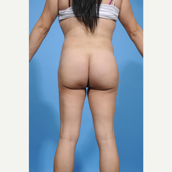 35-44 year old woman treated with Brazilian Butt Lift after 3338856