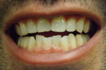 Young Male After ZOOM Teeth Whitening before 1010097