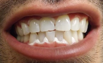 Young Male After ZOOM Teeth Whitening after 1010097