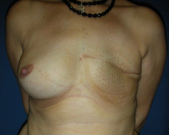 40 year woman for breast reconstruction with implants before 1254603
