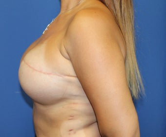40 year woman for breast reconstruction with implants 1254603