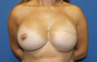 40 year woman for breast reconstruction with implants after 1254603