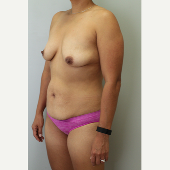 35-44 year old woman treated with Mommy Makeover before 3406490