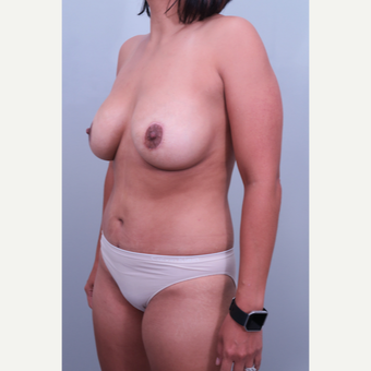 35-44 year old woman treated with Mommy Makeover after 3406490