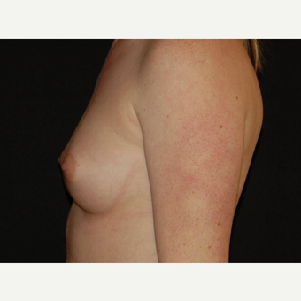 25-34 year old woman treated with Breast Implants before 3650993