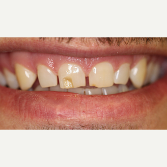 25-34 year old man treated with Dental Bonding before 3851973