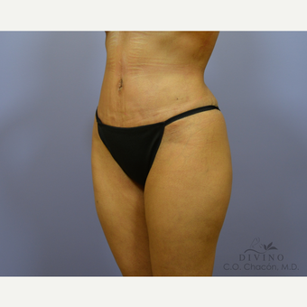 35-44 year old woman treated with Tummy Tuck after 3415609
