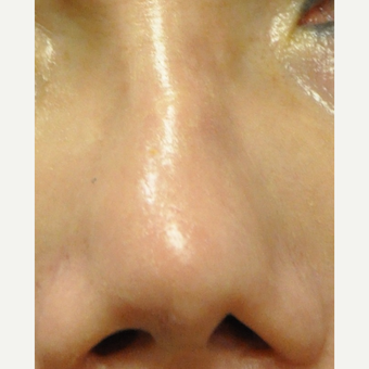 45-54 year old woman treated with Restylane to correct Nose before 3212356