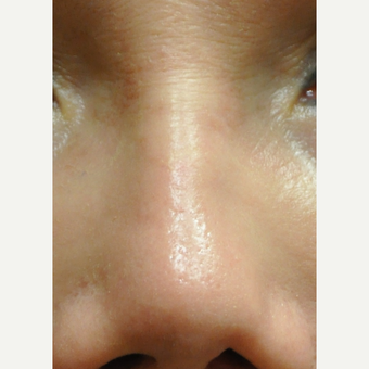45-54 year old woman treated with Restylane to correct Nose after 3212356